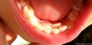 Dental Timeline for a Growing Child — Dunes Dental 4 Kids