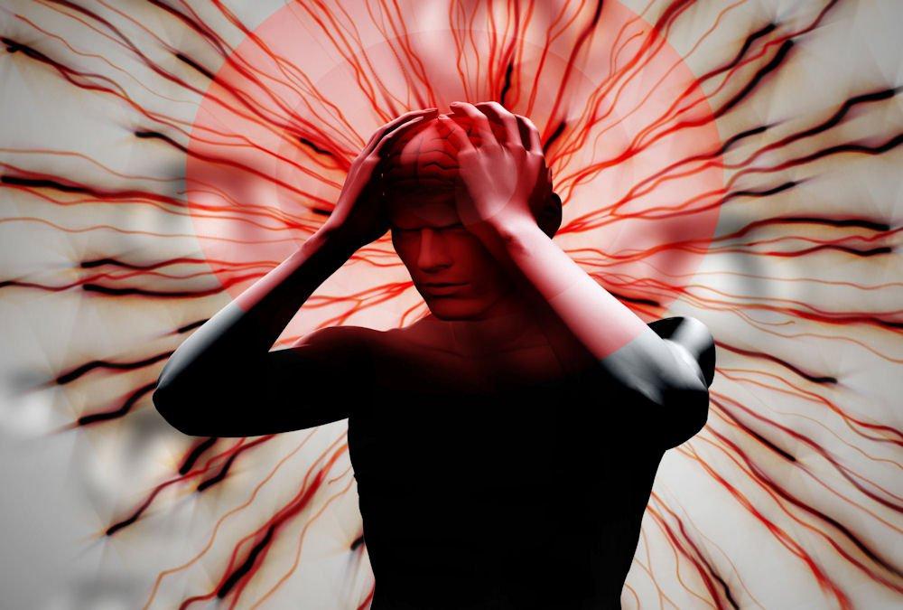 agh-my-head.jpg