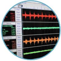 EMG Evaluation