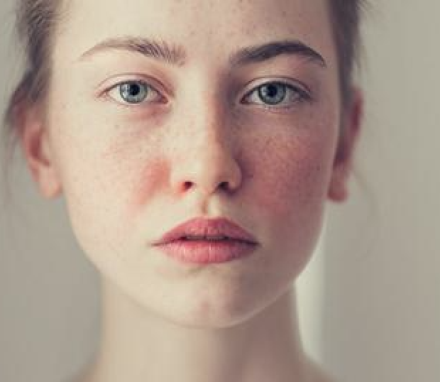 Let's Talk About Acne Rosacea Oakland Vision Center Eye Doctor