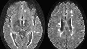 Abbildung 3: Entmarkungsherde in der weißen Substanz des Gehirns bei Multipler Sklerose