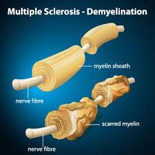 Abbildung 1: Entmarkung einer Nervenzellbahn