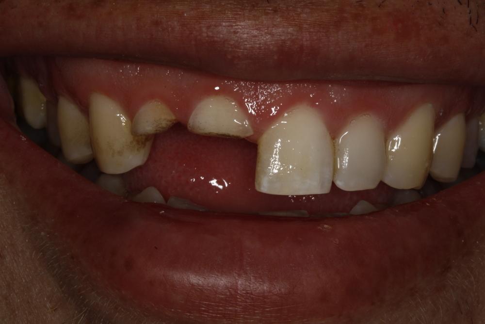 T.Barber implant2.jpg
