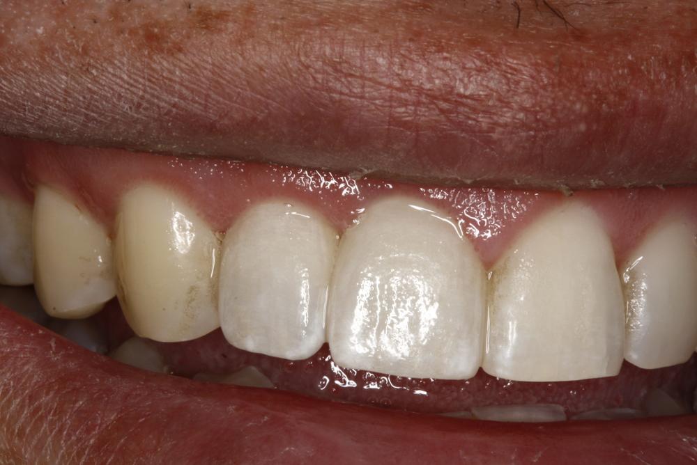 T.Barber implant4.jpg