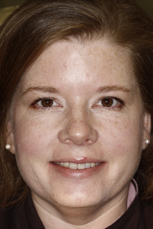 B.implant missing tooth (2).jpg