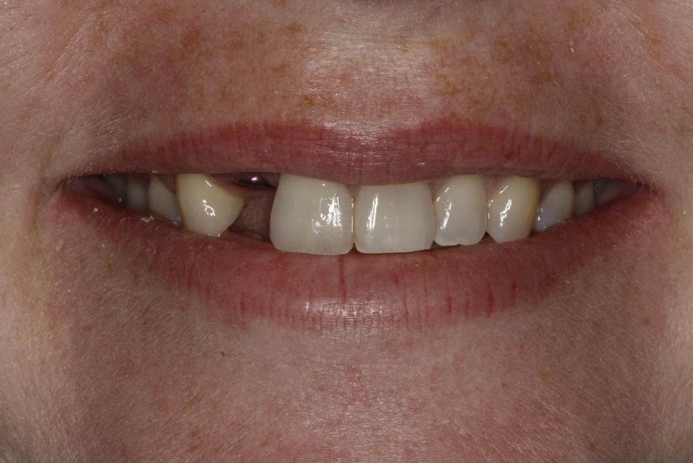 B.implant missing tooth (1).jpg