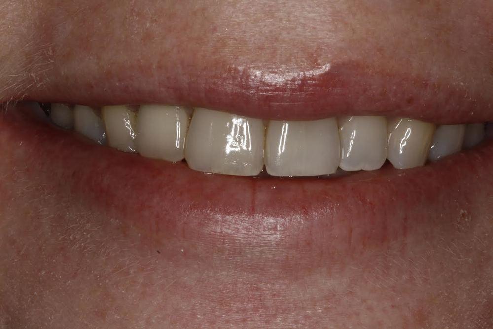 B. implant missing tooth.jpg