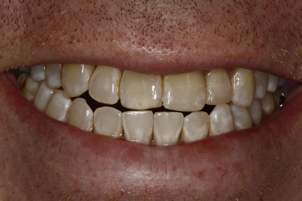 Steve Implant (3).jpg