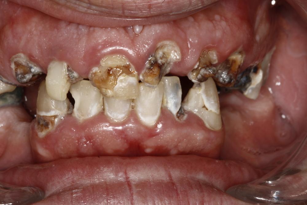 Denture & Composite Fillings (1).jpg