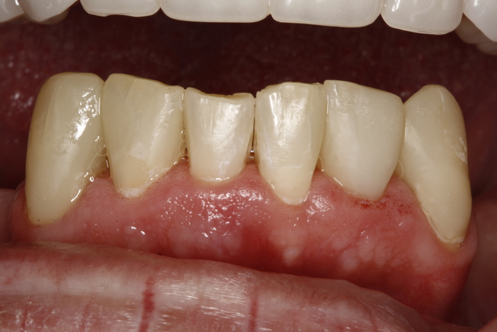 Denture & Composite Fillings (4).jpg