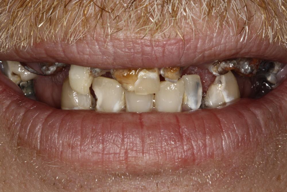 Denture & Composite Fillings.jpg