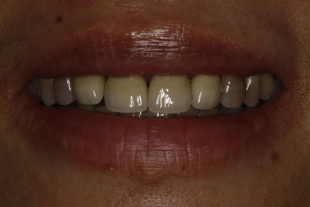 Tramy Implants2(2).jpg