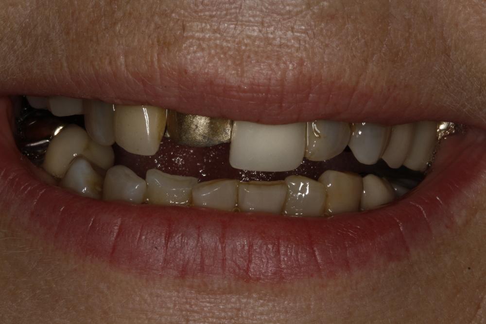 2011-07-19  Ellie 610.37.33.jpg