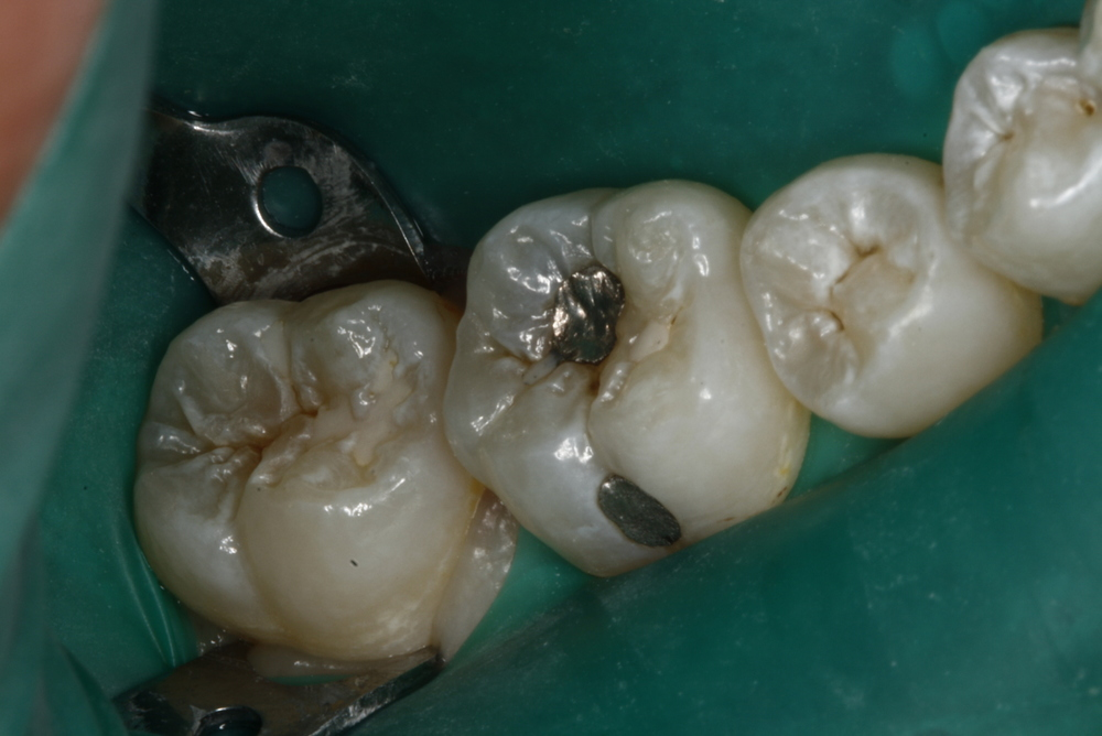 Composite Fillings.jpg