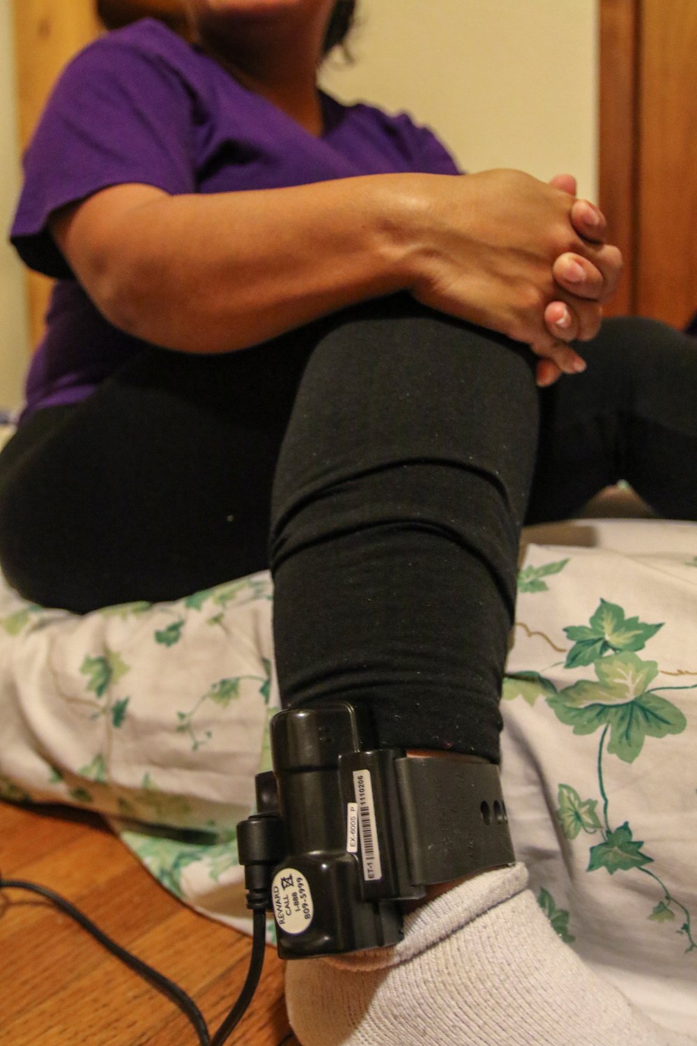 An ankle shackle monitor is applied indiscriminately to women as they are released, often without a court order. None of these women has been charged with a crime. Photo: Jeff Pearcy/UUSC