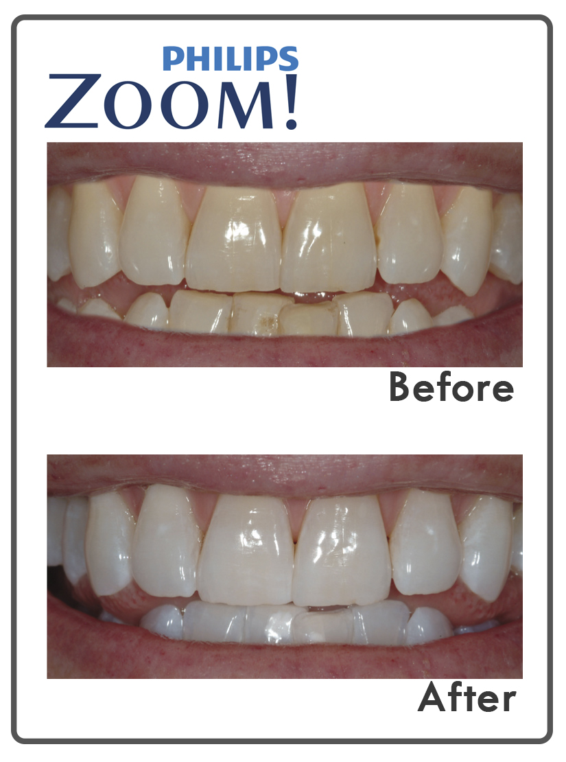 Philips Zoom! teeth whitening before and after