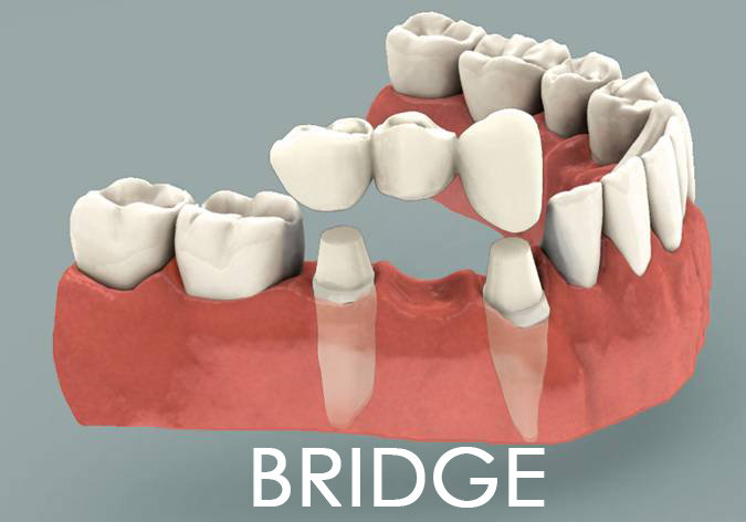 dental bridge placement
