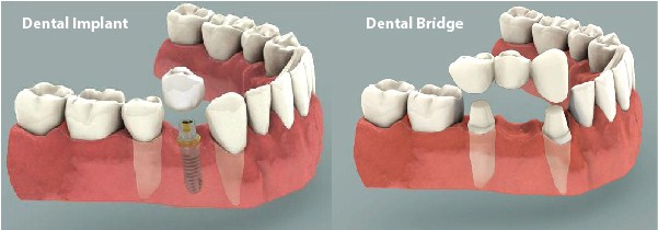 difference between dental implant and dental bridge