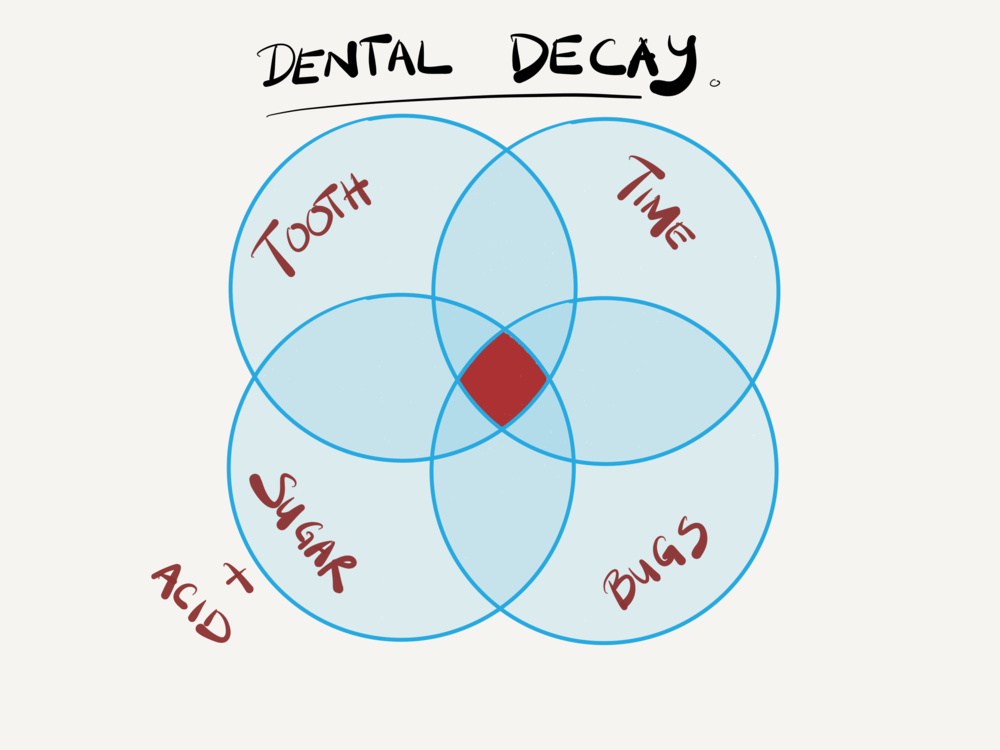 What makes dental decay