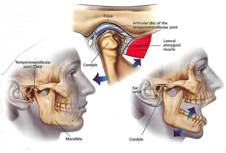 Temporomandibular joint dysfunction syndrome explained