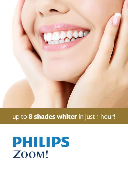 aperturedental-promosection-teethwhitening.jpg