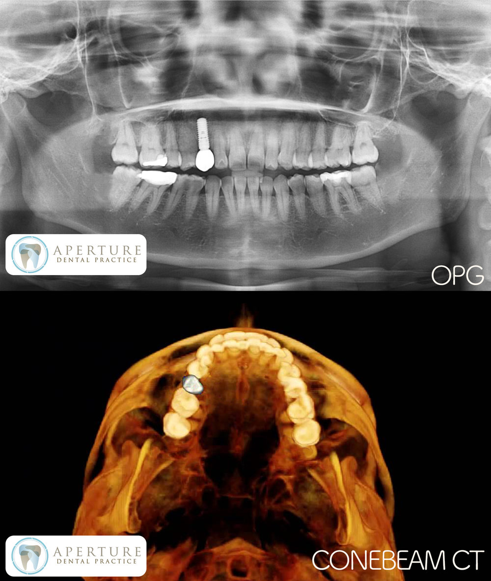 OPG CBCT.png