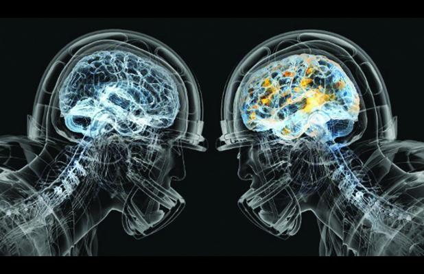 concussion.xray_.P.9-3-15.jpg