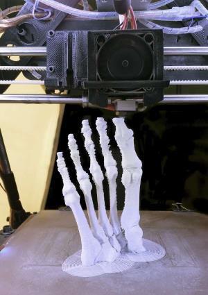 3d-printing-fdm-foot-bone.jpg