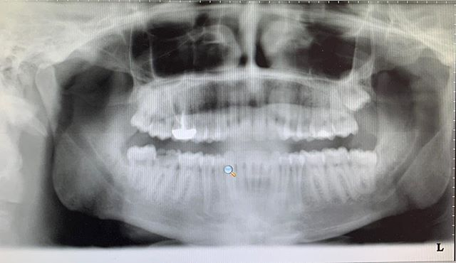 One of my first implant cases from 3 years ago on #31.  My patient was never able to bite on his right side due to his broken tooth.  Every time he comes in for his 6 month exam,  he thanks me for talking him into doing the implant!  But blames me for gaining 10 pounds 😂