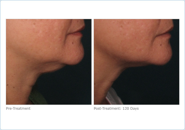 ultherapy_lower_face_2-1.jpg