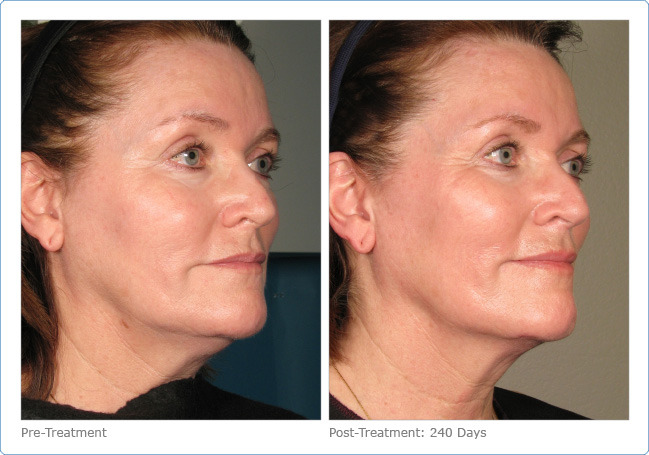 ultherapy_full_face_2-8.jpg