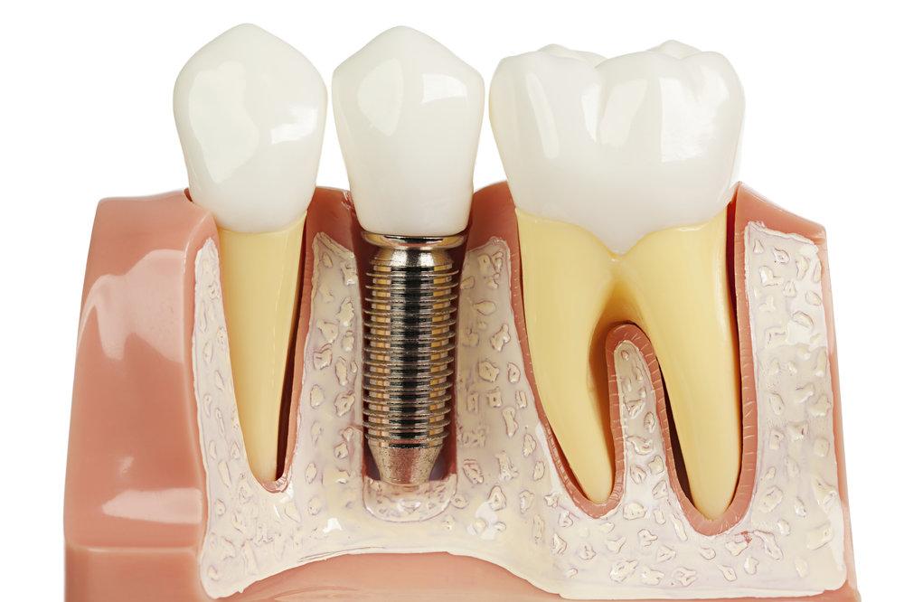 Dental implants, Launceston Periodontic Clinic