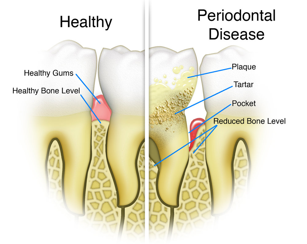 Periodontal disease, Launceston Periodontic Clinic