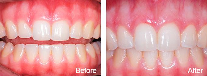 Kate Mitchell Periodontics and Dental Implants, Launceston