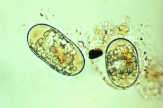 Alexandrium fundyense cysts