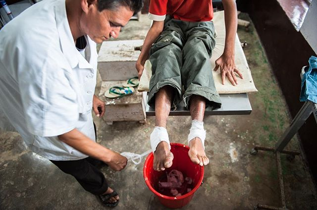 With extreme care and compassion Tara Datt Pant removes the bandages around Siddah's badly burned feet. Suffering with leprosy and cerebral palsy, Siddah fell asleep too close to a fire, charing his feet to the point he couldn't walk. After administering leprosy treatments, Tara Datt continued cleaning and treating Siddah's feet every day. ⠀ -⠀ That simple act of medical care was doing something much deeper in Siddah. All he heard from his family was how he wasn't good enough--abandoned at the hospital completely dejected, unable to even look up at anyone.⠀ -⠀ With every treatment, every visit in the ward, every meal, Tara Datt slowly watched Siddah begin to open up. Today his smile lights up a room.⠀ -⠀ Simple acts of kindness and unconditional love can change a life forever!⠀ -⠀ #photojournalist #photodoucumentary #reportagespotlight #ngostorytelling #ngo #ngophotographers #ngophotography #nonprofitorganization #nonprofitwork #thegreatcommission #greatcommission #communityservice #missions #seekhimfirst #loveothers #helpthoseinneed #loveothers #liveauthentic #alifealive #folkgood #forgeyourownpath #gobe #socality #finditliveit #impact #advocacy #aspire #connected #compassion #givehope