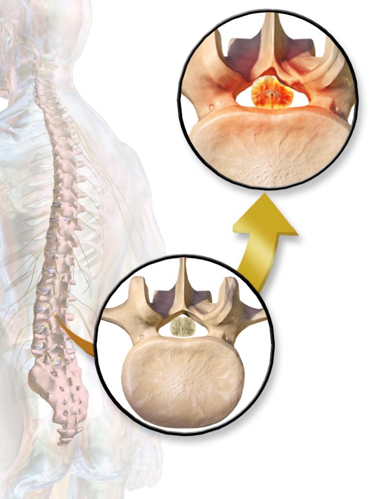 spinal stenosis spine center charleston spine surgeon back pain spine institute