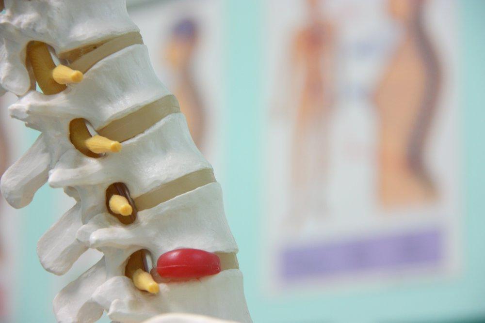 herniated disc lower back pain bulging disc spine surgeon back doctor charleston
