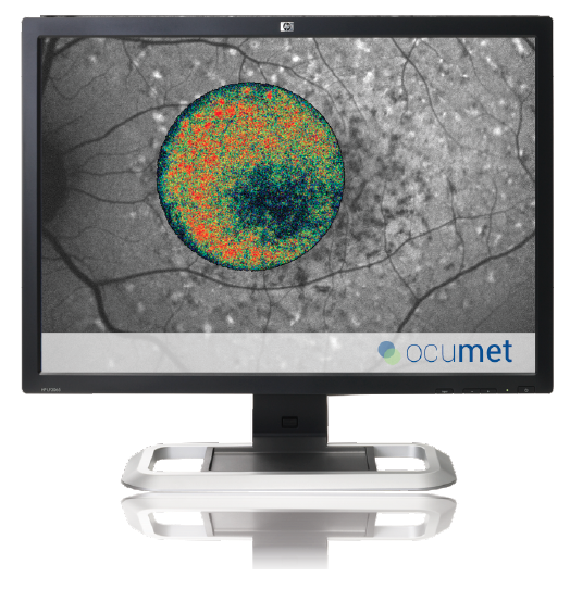 OcuMet Beacon™ software displays a variety of images to help detect eye disease.