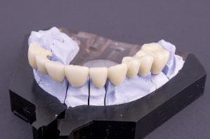 Bridges Dentist San Rafael