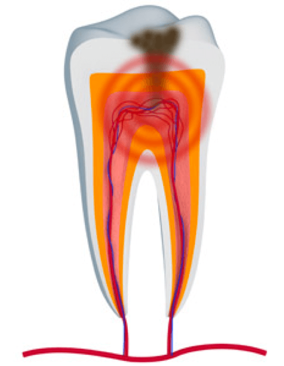 Example of a cavity that can cause a tremendous amount of pain.