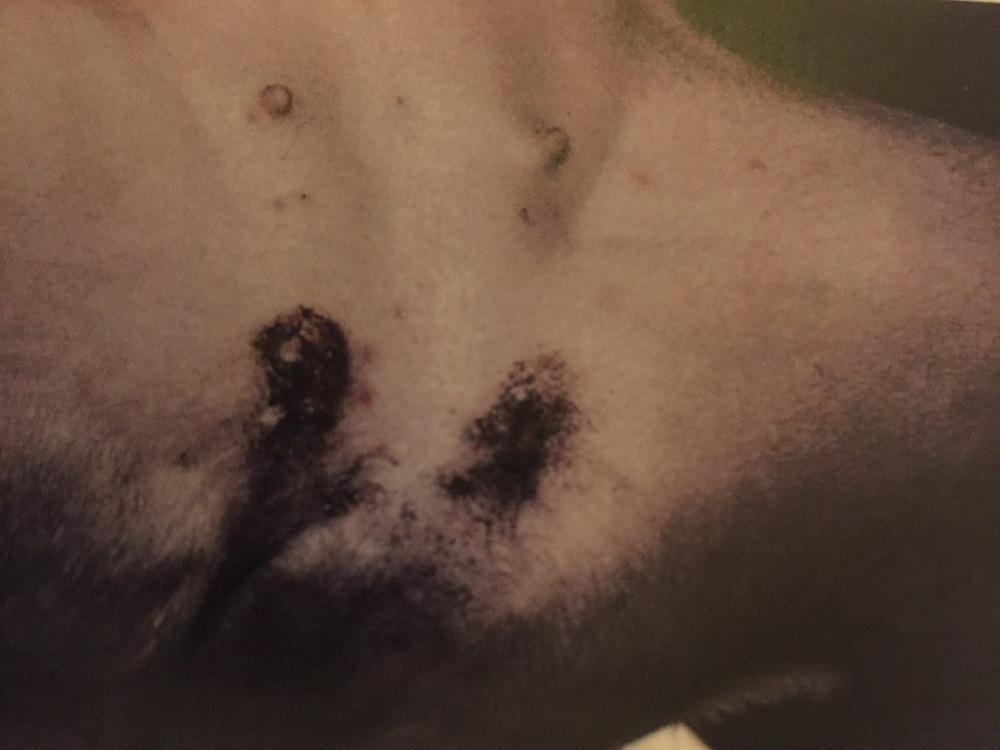 pigmented plaque: melanoma