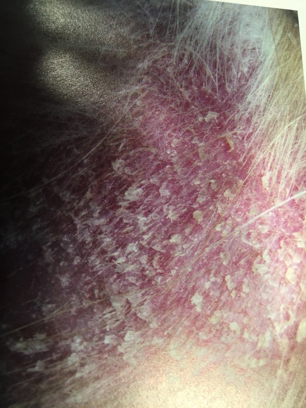 Scaling patch- cutaneous lymphoma