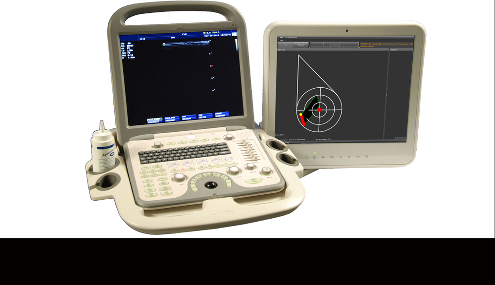 BVN™ displays the ultrasound probe position and scan-plane, in real-time, over a breast diagram.