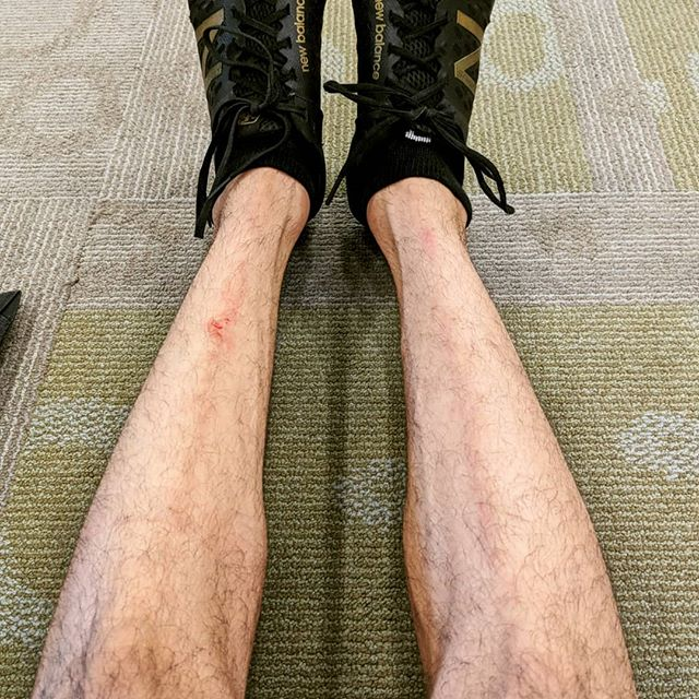 Starting to re-develop those #deadlift track marks. #legday