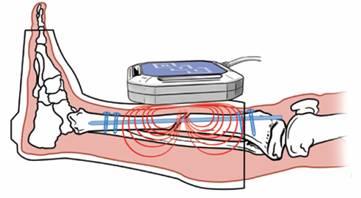 Działanie pola magnetycznego na złamaną okolicę kości piszczelowej