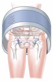 Zastosowanie magnetoterapii w leczeniu koksartrozy