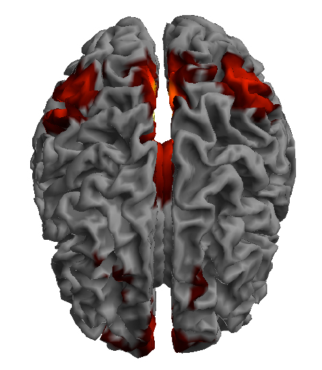 Resting-state functional MRI showing connectivity in the Default Mode Network - Image Credit: J. Posner
