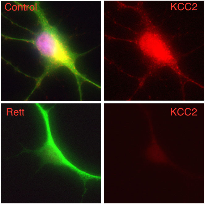 In this composite image, a human nerve cell derived from a patient with Rett syndrome shows significantly decreased levels of KCC2 compared to a control cell. – Image Credit: Gong Chen lab, Penn State University