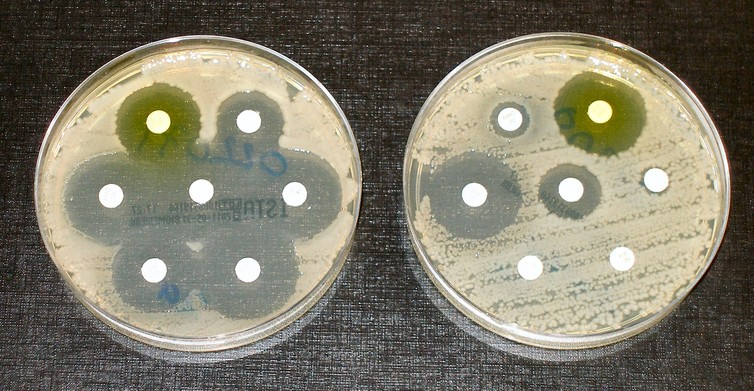 Seven antibiotics tested: bacteria on the left are susceptible to all antibiotics, as shown by the dark, clear rings where bacteria have not grown. Those on the right are fully susceptible to only three. – Image Credit: Dr Graham Beards/wikipedia,  CC BY-SA